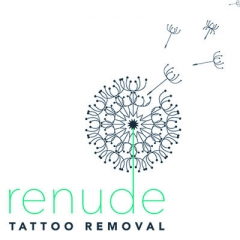 Renude Laser Tattoo Removal